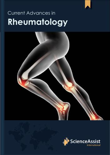 Current Advances in Rheumatology